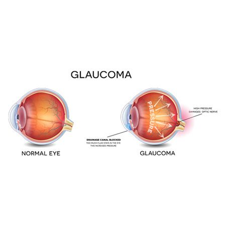 best eye hospital in india for glaucoma