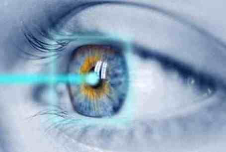 lasik-passing-through-eyes