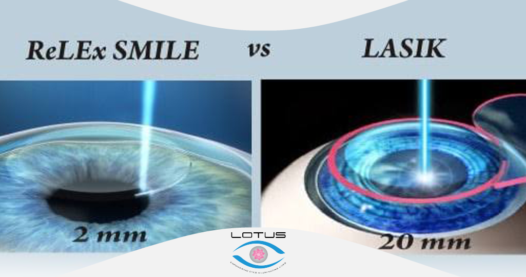 Relex and lasik Surgery