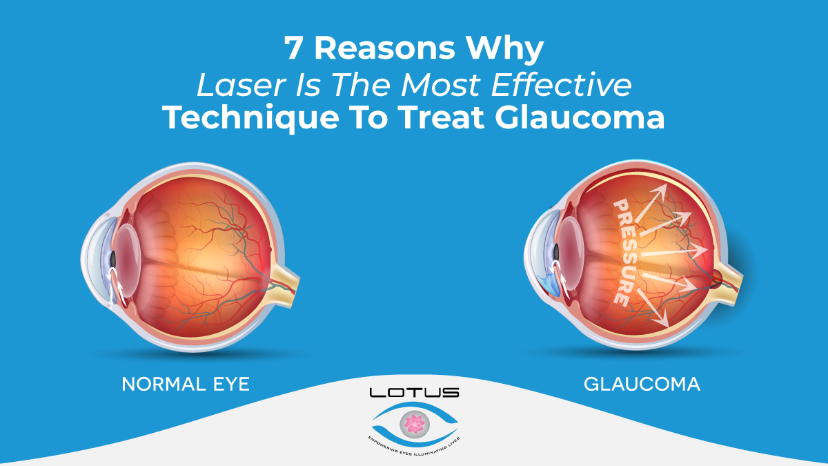 7 Reasons Why Laser Is The Most Effective Technique To Treat Glaucoma
